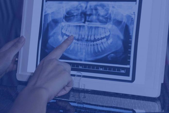 consulenza radiologica odontoiatrica online